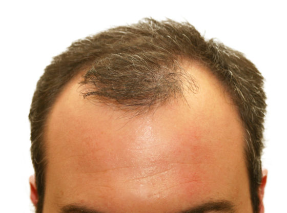Why to Opt For Hair Transplant Treatment?